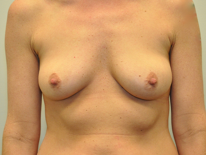 Silicone Breast Implants Grand Rapids