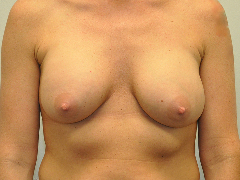 Ideal Breast Implants Grand Rapids