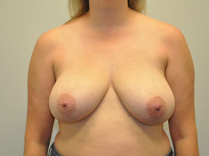 Breast Lift Grand Rapids